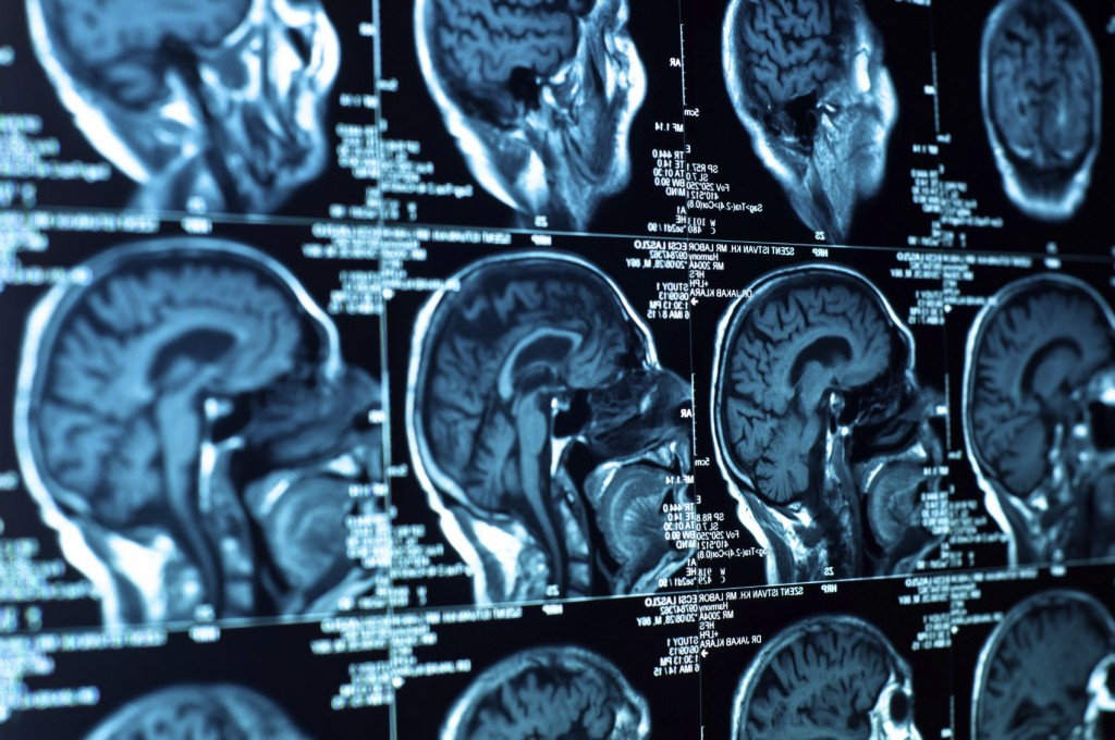 Cynical? You May Be More Likely To Develop Dementia