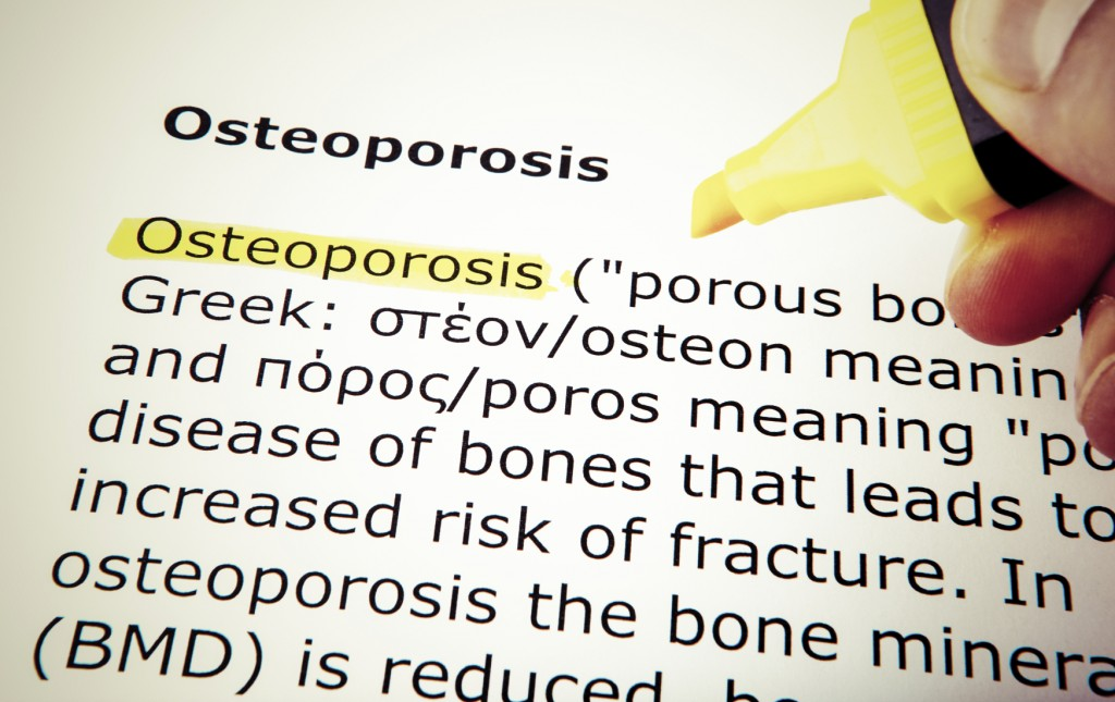 Osteoporosis – Ways to Avoid the 'Silent Disease'