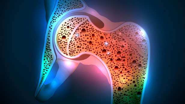 Exercises for Osteopenia and Osteoporosis Prevention – Part 3